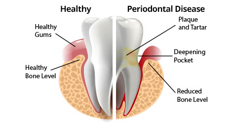 periodontal-disease