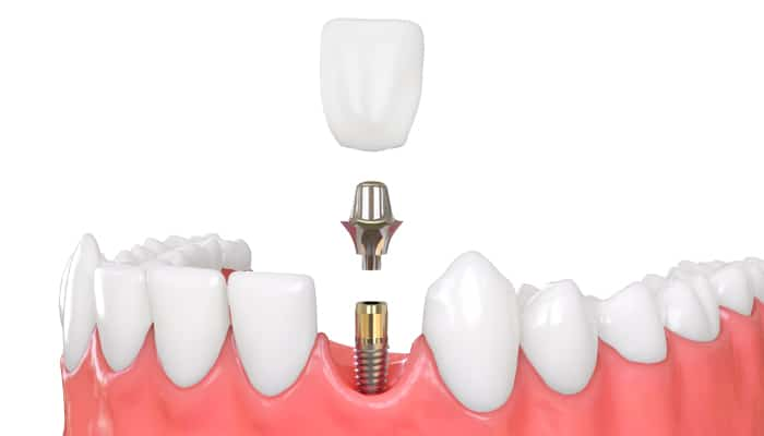 graphic of dental implant being placed into gap in lower set of teeth