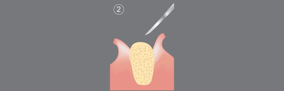 Dental implants procedure step 2
