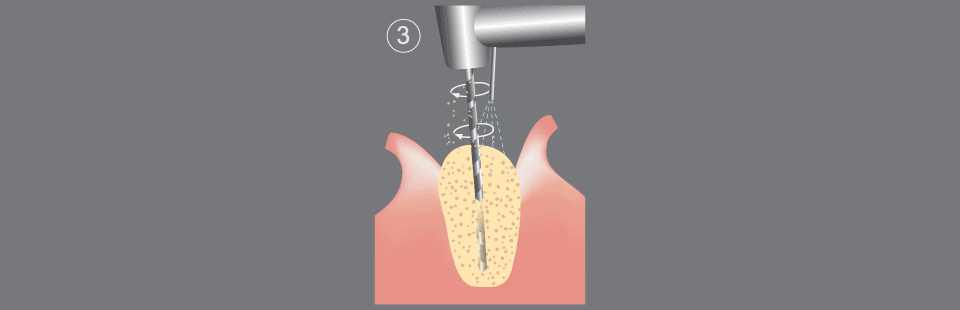 Dental implants procedure diagram