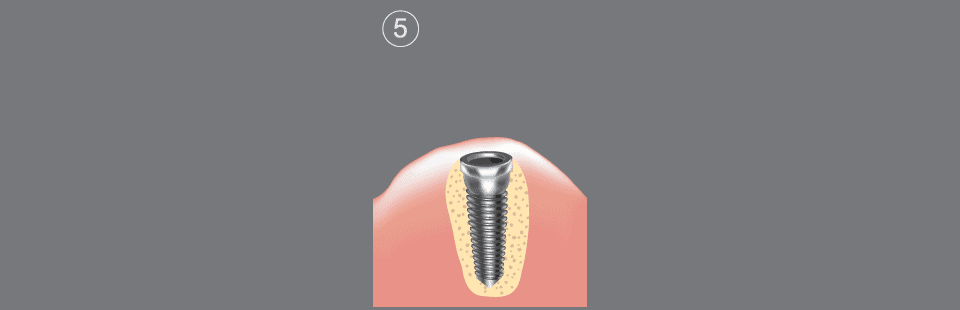 Dental implants procedure step 5